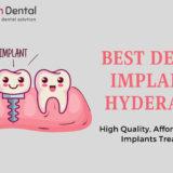 Best Dental Implant Hospital in Hyderabad