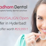 Biggest INVISALIGN Open Day Offer in Hyderbad!